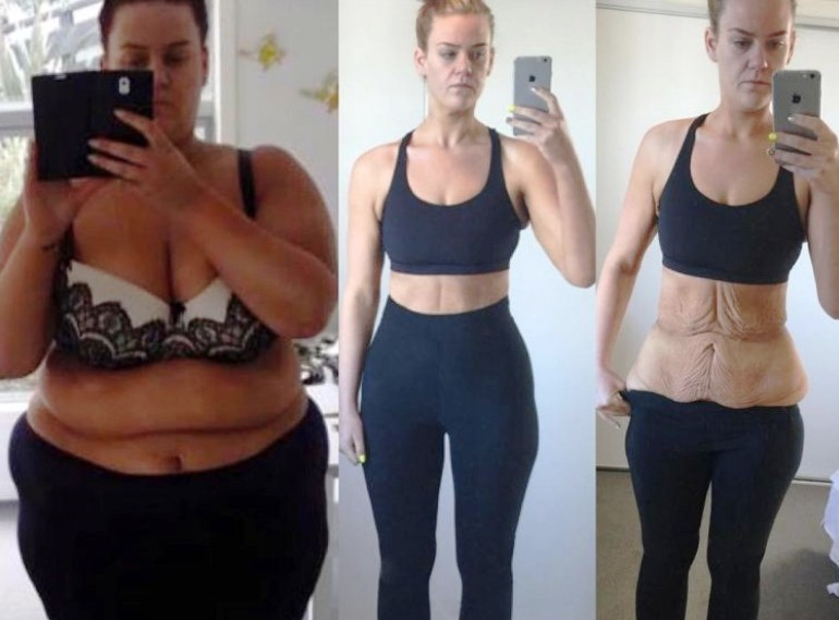 Симон Андерсон снизила вес на 85 кг за 11 месяцев