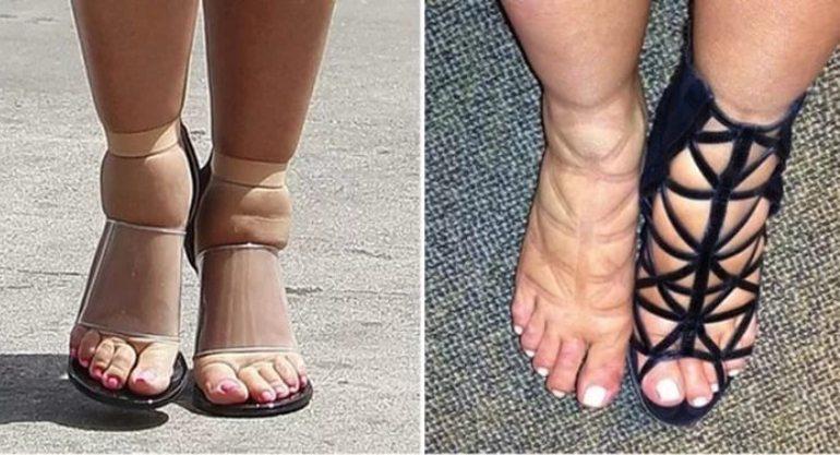 Народные средства помогающие бороться с отёками ног