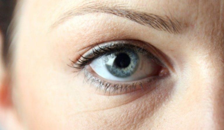 Что делать если есть морщины под глазами