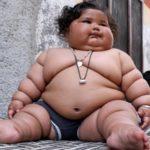 Большинство матерей не признают наличие ожирения у детей